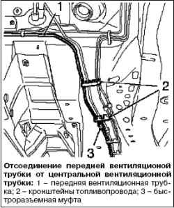 Замена передней вентиляционной трубки